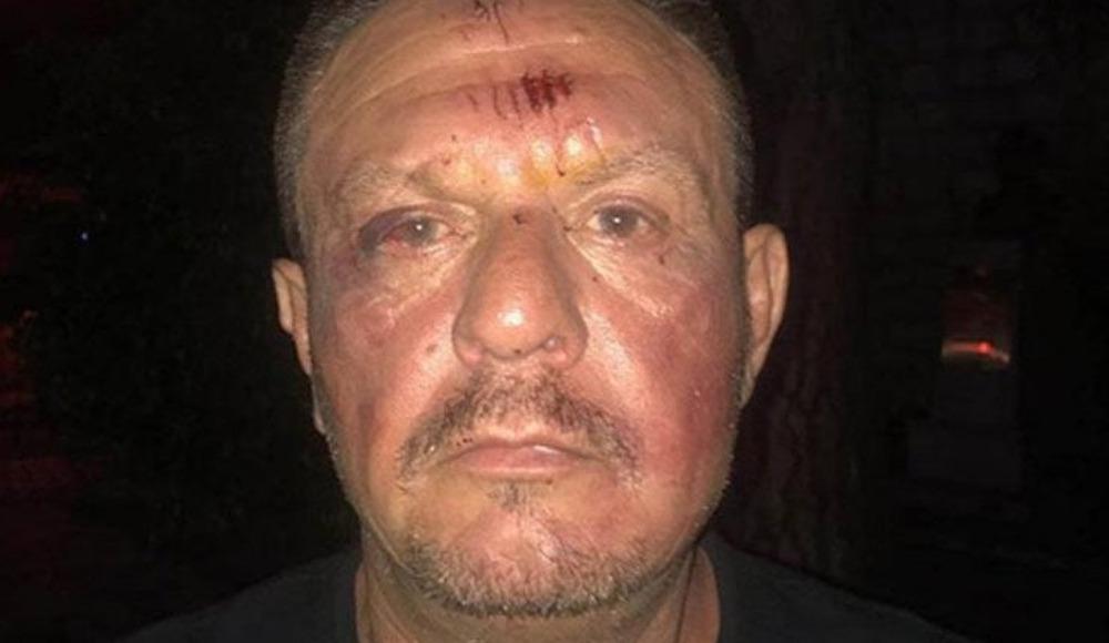 Muğla Valiliği'nden Ali Çetin'in polis tarafından darp edildiği iddiasına yalanlama