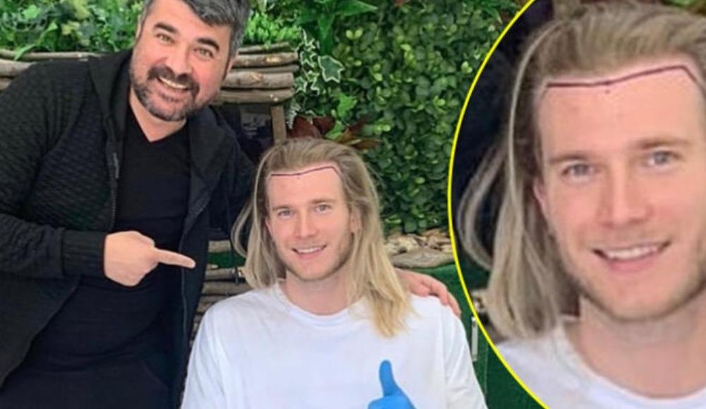 Loris Karius'un ülkesine dönmeden önce saç ektirmiş!