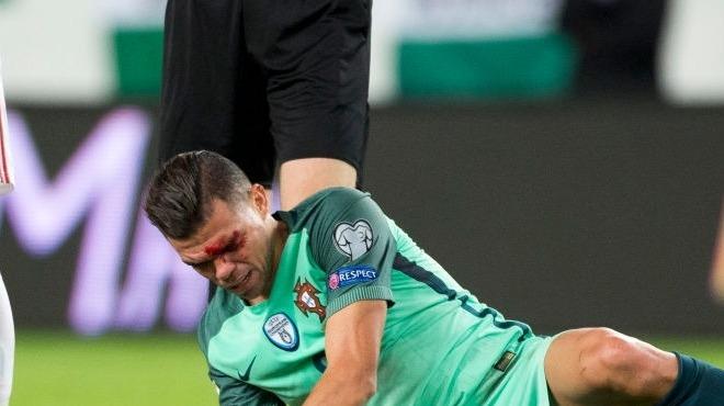 Pepe'den özür diledi!