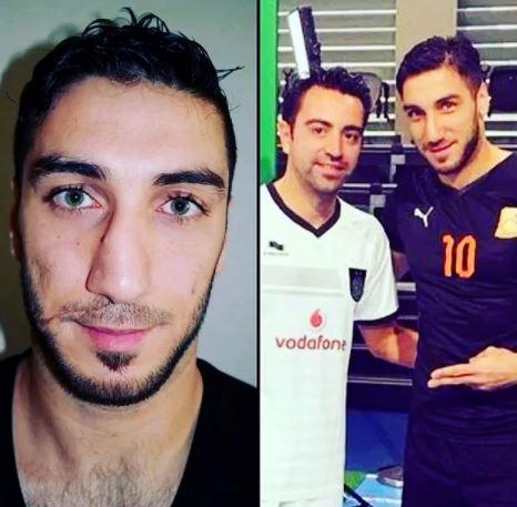 İşte estetik yaptıran 20 futbolcu.. Türkiye'den tanıdık iki isim var