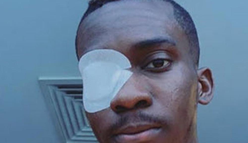 Henry Onyekuru, sosyal medyadan son hâlini paylaştı!
