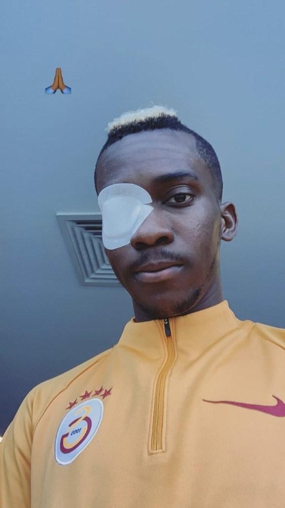 Henry Onyekuru gözünün son halini paylaştı